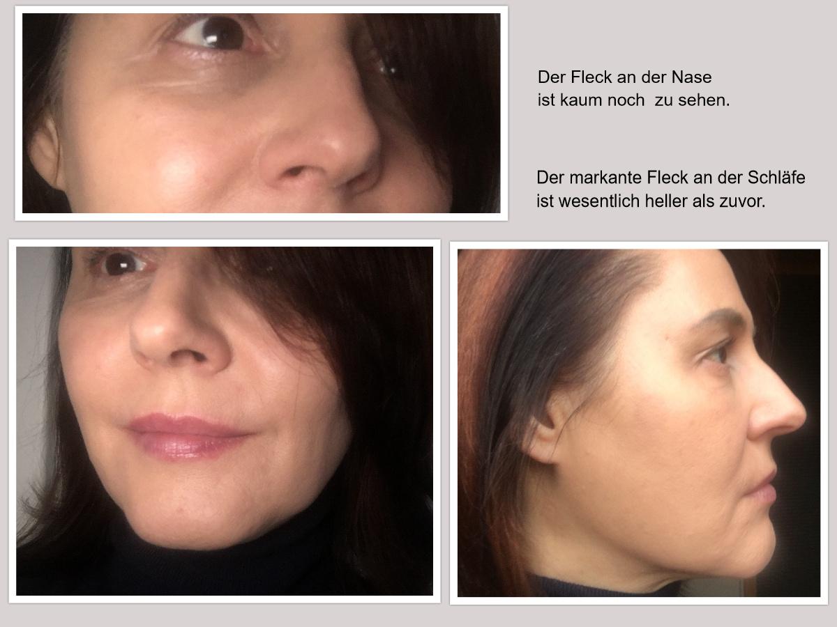 Vorher/Nachher-Fotos Pigmentflecken entfernen